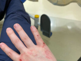 Andy Ngo's injuries from alleged attack.